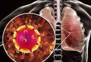 چطور متوجه شویم ویروس کرونا به ریه های ما حمله کرده است؟